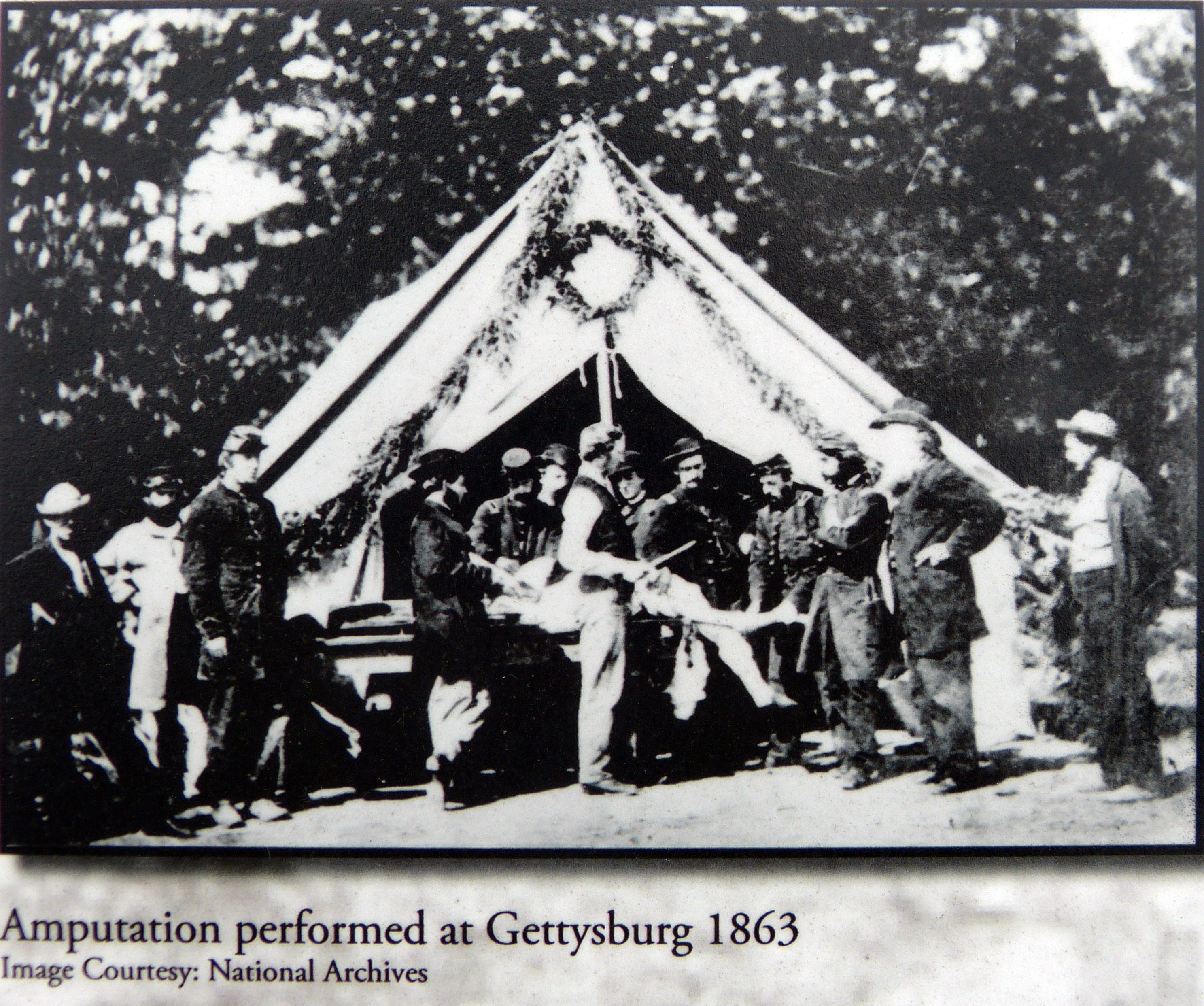 Amputation performed at Gettyburg 1863