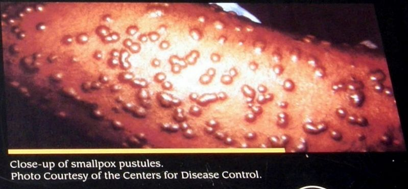 Insert - Smallpox pustules image. Click for full size.